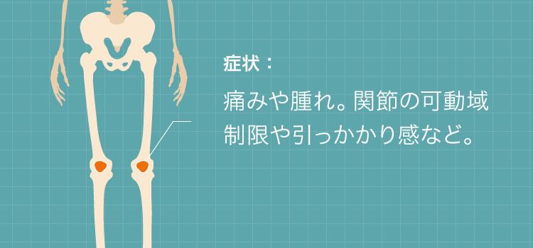 痛みや腫れ。関節の可動域制限や引っかかり感など。